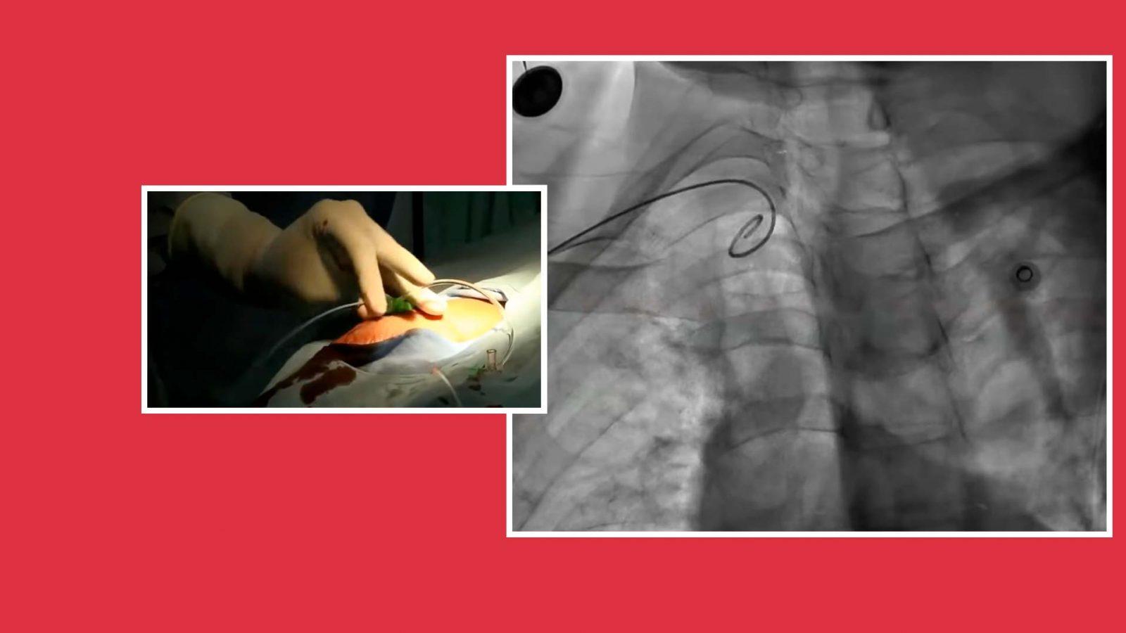 Cardiología intervencionista 1 - Dr. Joel Sánchez Figueroa