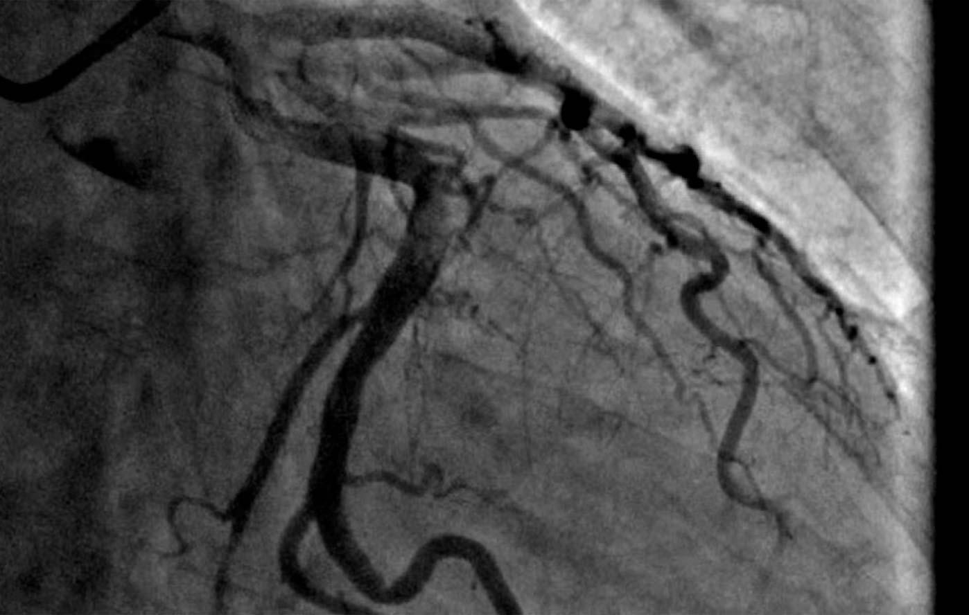 Cardiología Intervencionista 4