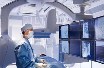angiografia en df