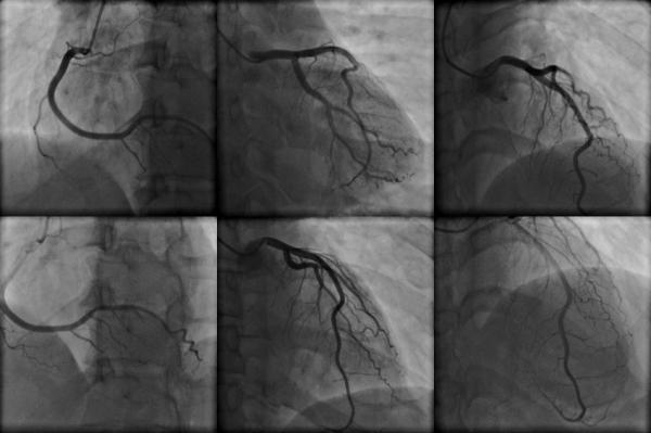 Angiograma Cardíaco en Puerto Vallarta