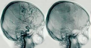 angiografía DF